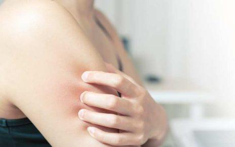 5 Jenis Obat Oles yang Ampuh Mengatasi Kulit Gatal