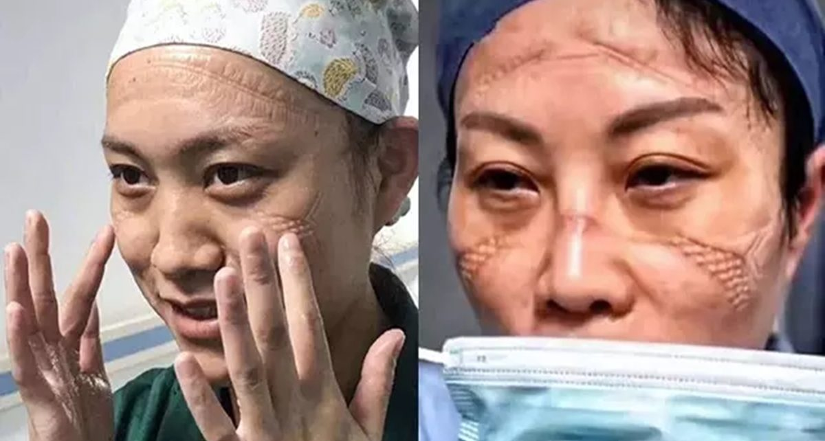 4 Perjuangan Dokter dan Perawat di Wuhan Rawat Pasien Virus Corona, Mengharukan