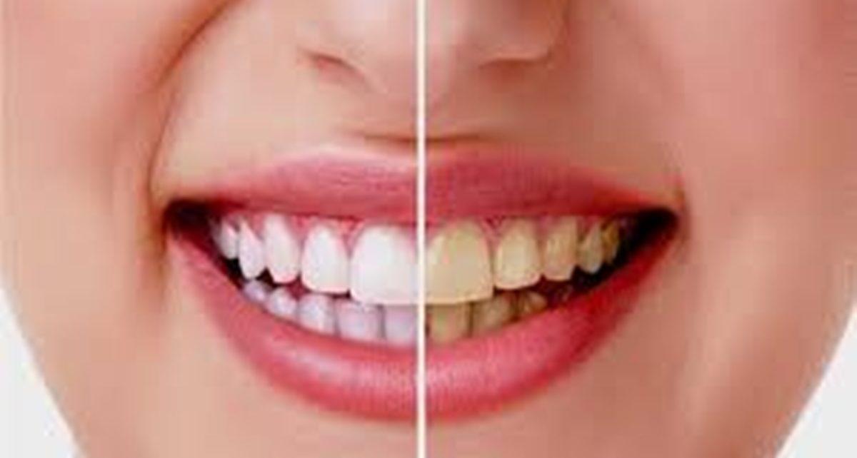 12 Cara Menghilangkan Karang Gigi Membandel, Mudah dan Murah