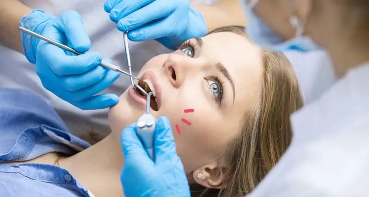 5 Cara Hilangkan Plak Gigi